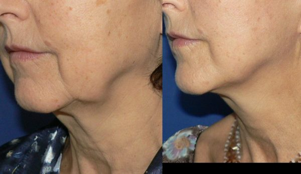 Фото до и после подтяжки