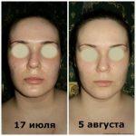 Фото до и после вакуумного массажа
