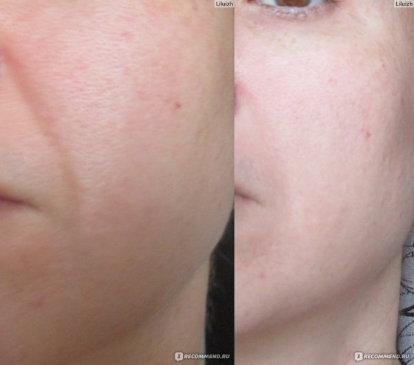 Фото носогубных складок до и после применения маски с маслом ши