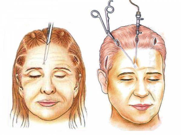 Рисунок, изображающий два женских лица во время операции по подтяжке лба