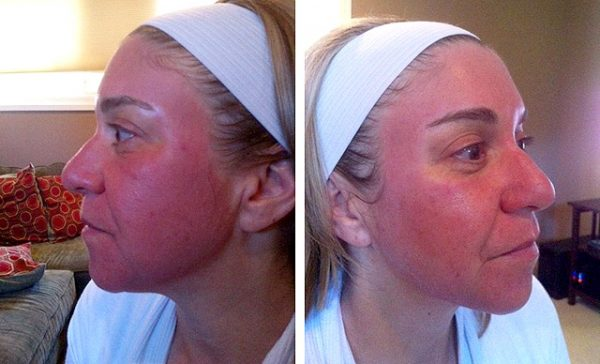 Женщина с красным лицом после лазерной шлифовки