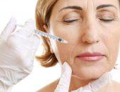коррекция носогубных складок филлерами