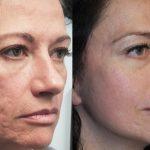 Лицо женщины до и после процедуры лазерной шлифовки