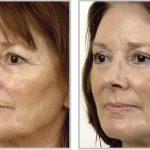 Лицо до и после процедуры лазерной шлифовки