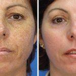 Лицо женщины до и после лазерной шлифовки