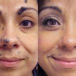Лицо до и после лазерной шлифовки
