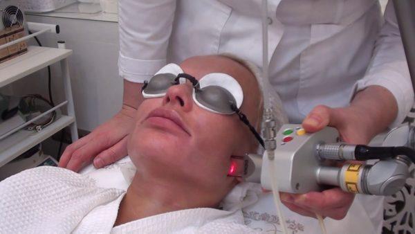 Обработка кожи лица лазером
