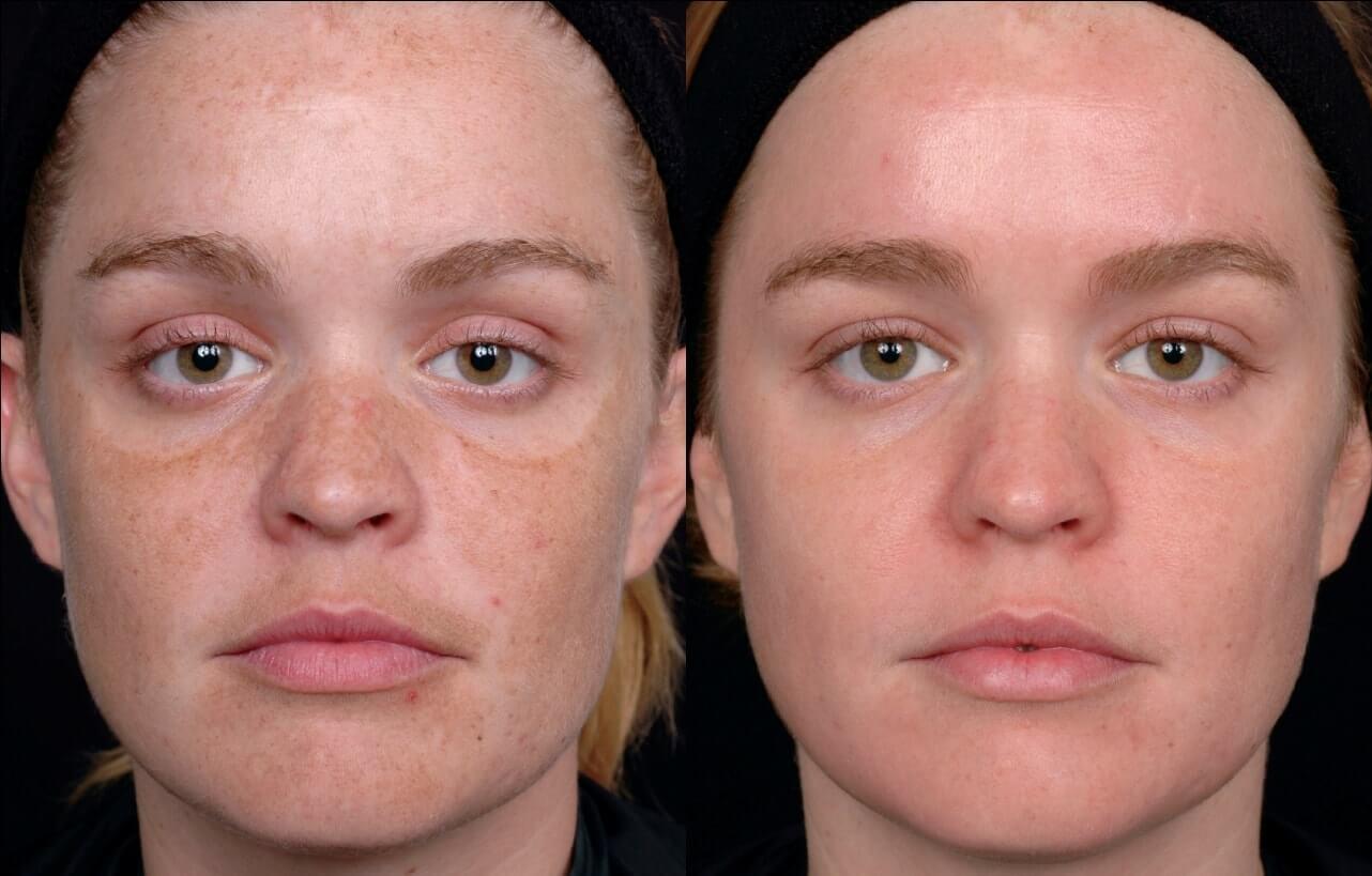 Лазерная шлифовка как эффективный способ оздоровления и омоложения кожи лица