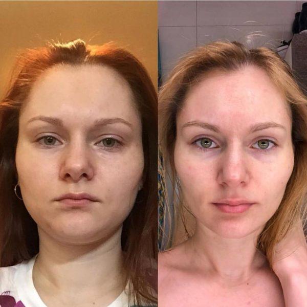 Лицо до и после курса гимнастики