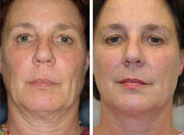 Лицо до и после RF-лифтинга