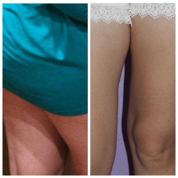 Ноги девушки до и после применения медового антицеллюлитного массажа
