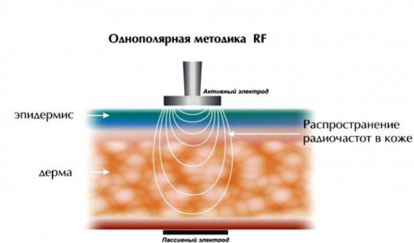 Однополярный RF-лифтинг: схема
