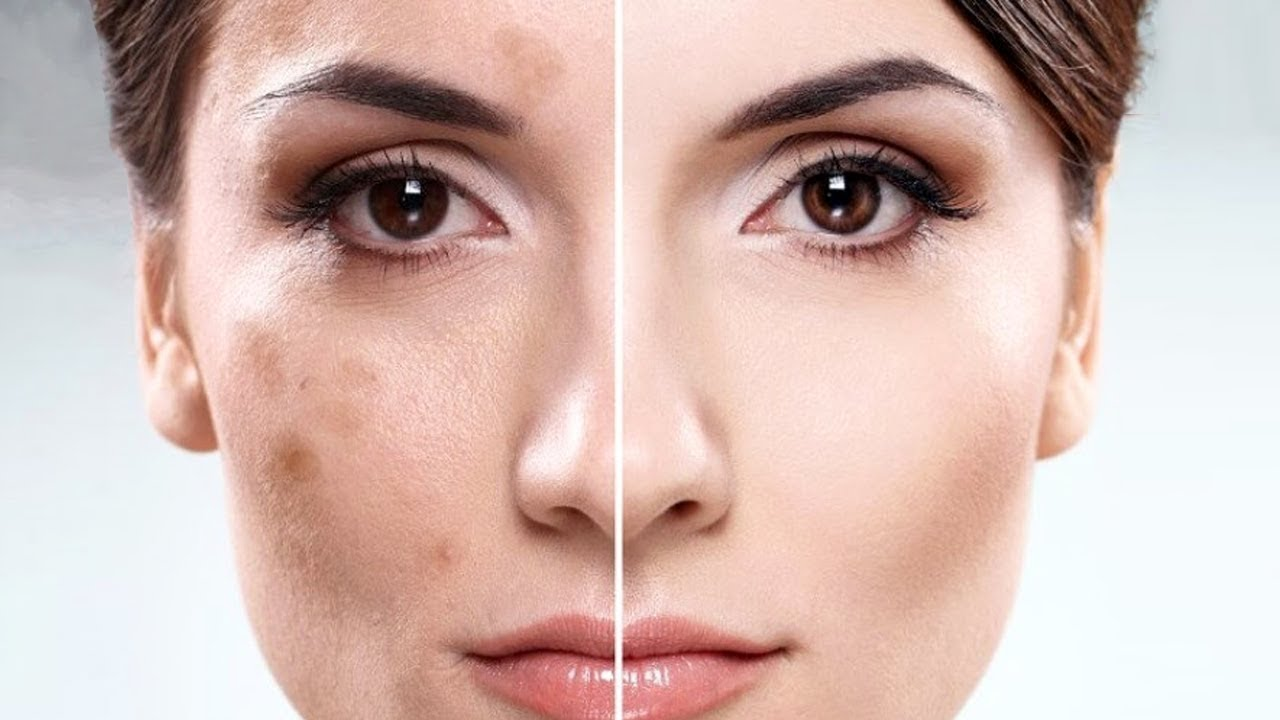 Как избавиться от пигментных пятен на лице, причины появления, виды пигментации