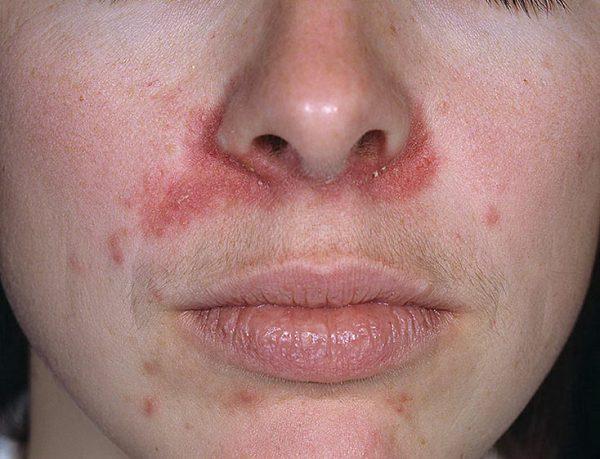 Пигментный околоротовой дерматоз Брока