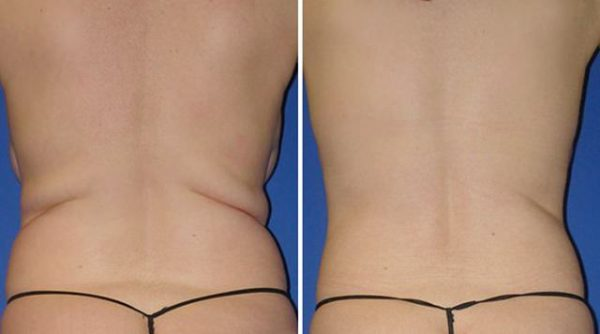 Результат липосакции спины