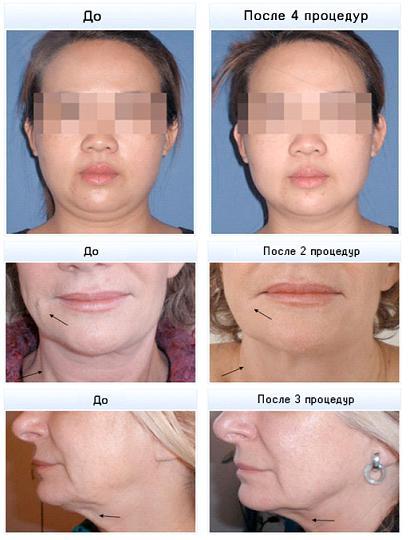 Результаты RF-лифтинга на лице