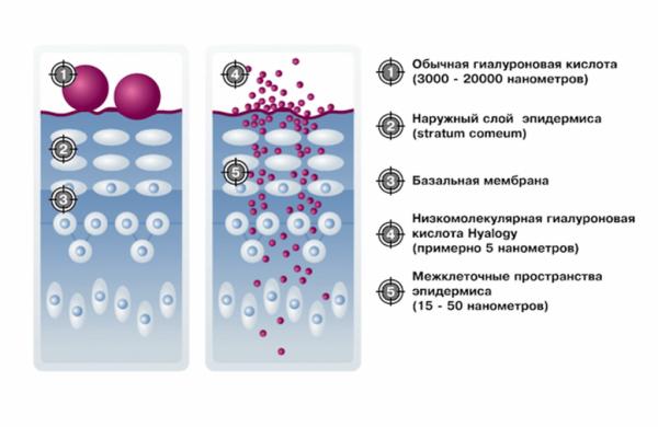 Схема проникновения гиалуроновой кислоты в кожу