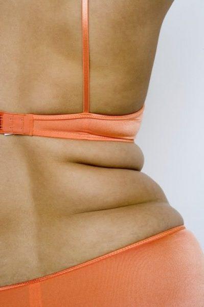 Складки на спине у женщины