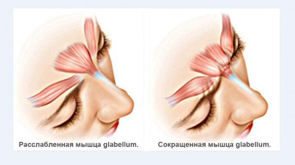 Сокращение лобной мышцы