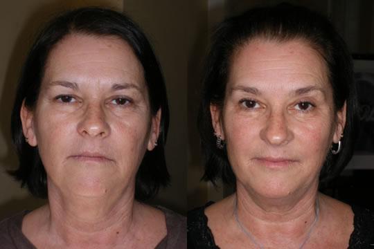 Упражнения для лица от признаков старения: до и после