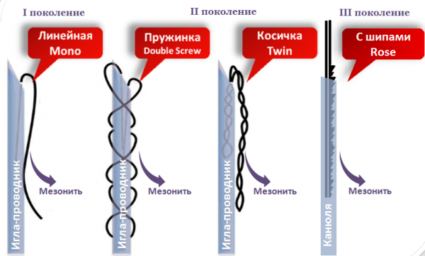 Виды мезонитей
