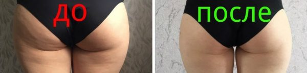 Ягодицы девушки до и после медового массажа