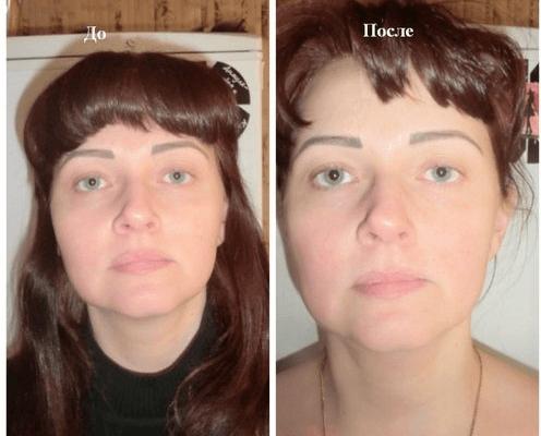Леди Юлия до и после курса процедур