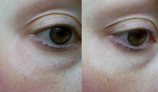 Веко до и после маски