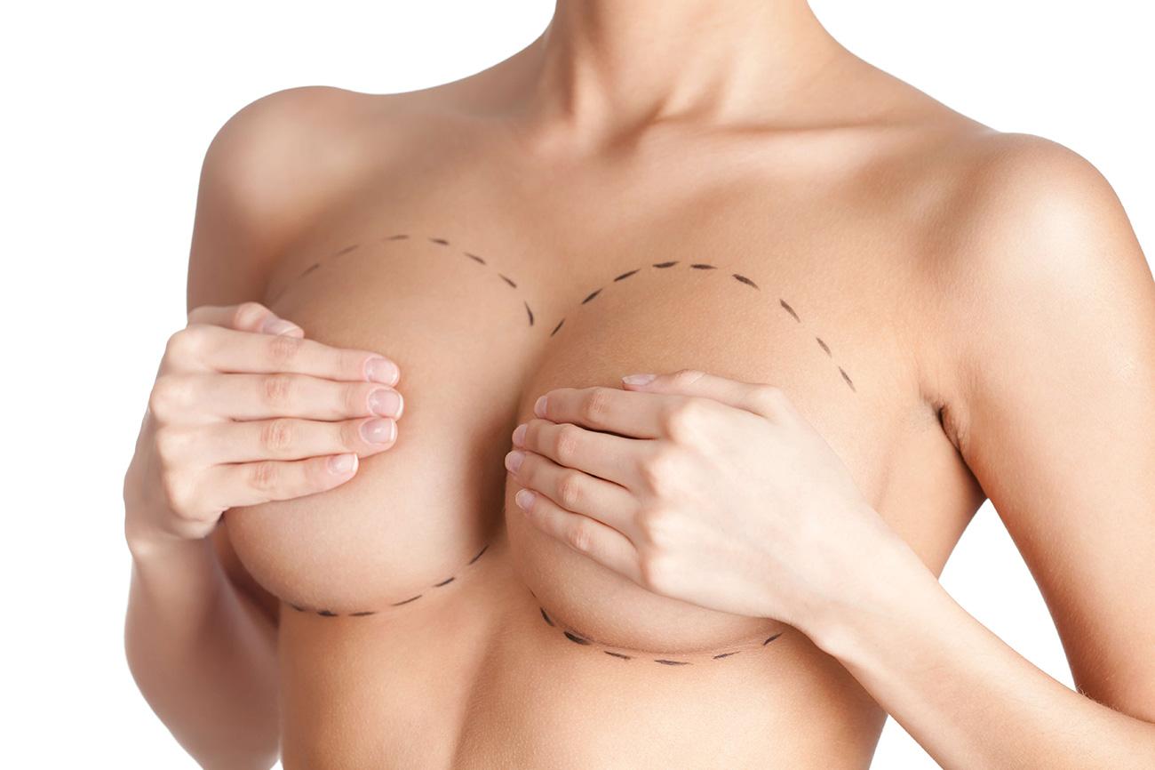грудь подтяжка