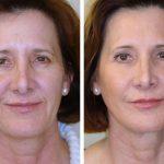 Лицо до и после биоармирования