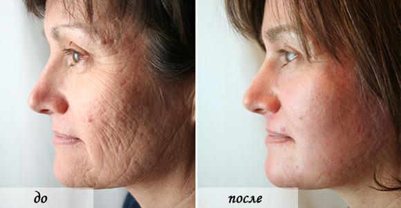 Лицо до и после химического пилинга