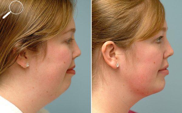 Лицо до и после укола липолитиков