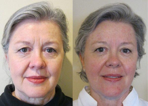 Лицо до и после лифтинг-массажа