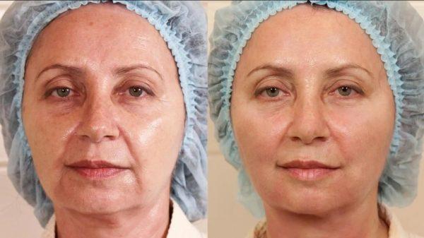 Фото пациентки до и после армирования жидкими нитями