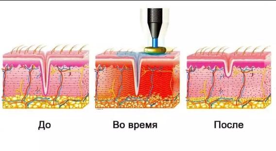 Прогревание кожи током