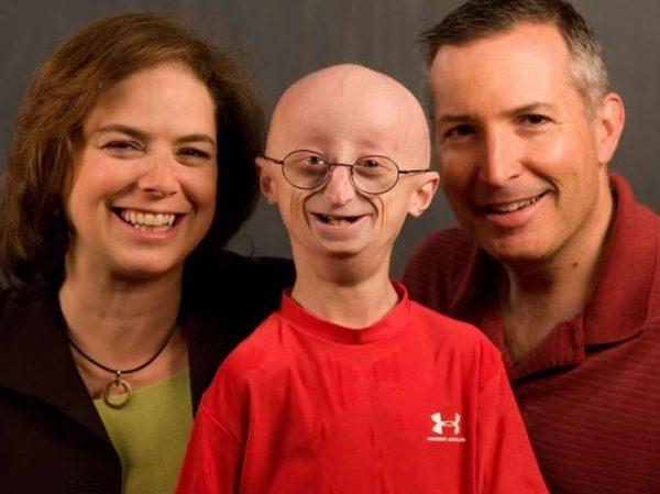 Ребёнок, больной прогерией, с родителями