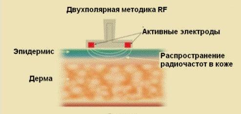 Схема действия двуполярного RF-лифтинга