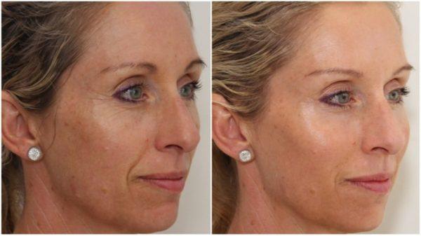 Скульптурный массаж лица: лицо девушки до и после курса процедур