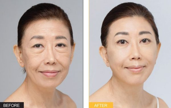 SMAS лифтинг (лицо женщины до и после)