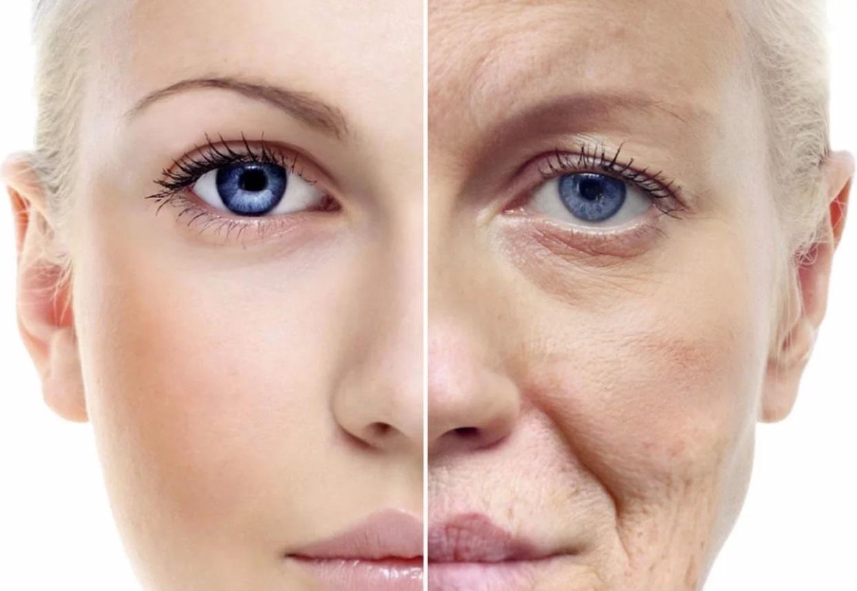 Подтяжка век – как осуществляется безоперационный и хирургический лифтинг
