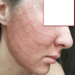 Яркие красные следы от сеточнообразного лазерного ожога на лице