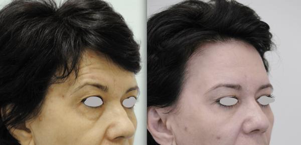 Фото женщины до и после коррекции лба