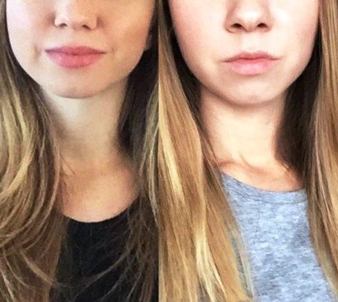 Изображение одной и той же девушки с разным объемом лица