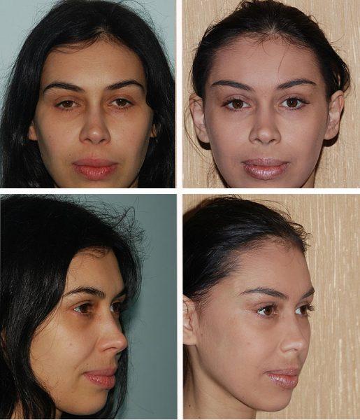 Изображение женщины до и после броулифтинга