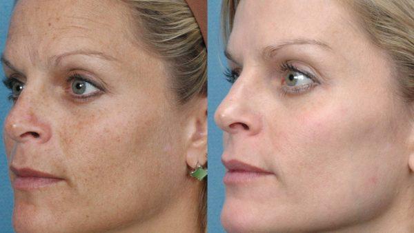Фото женщины до и после подтяжки лба