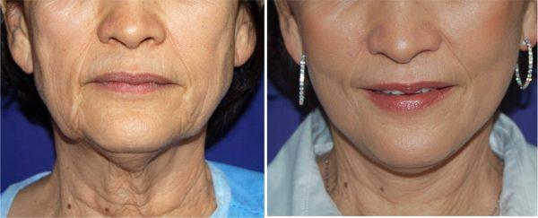 Фото женщины до и после подтяжки шеи