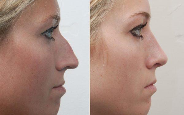 Фото женщины до и после ринопластики
