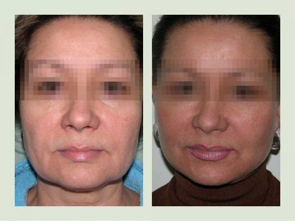 Фото женщины до и после спейслифтинга