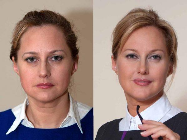 Фото женщины до и после введения имплантатов