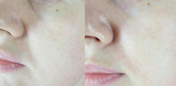Кожа до и после использования маски